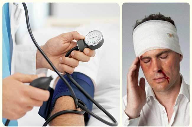 черепно-мозговая травма
