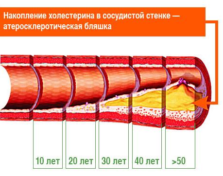 типы атеросклероза